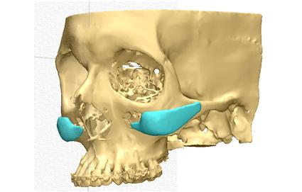 Diagnóstico y Planificación 3D en Argentina