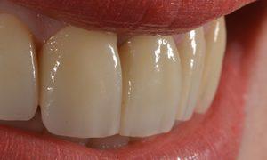 Espacio entre los dientes y malformaciones dentarias