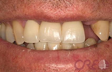 Implantes - Antes