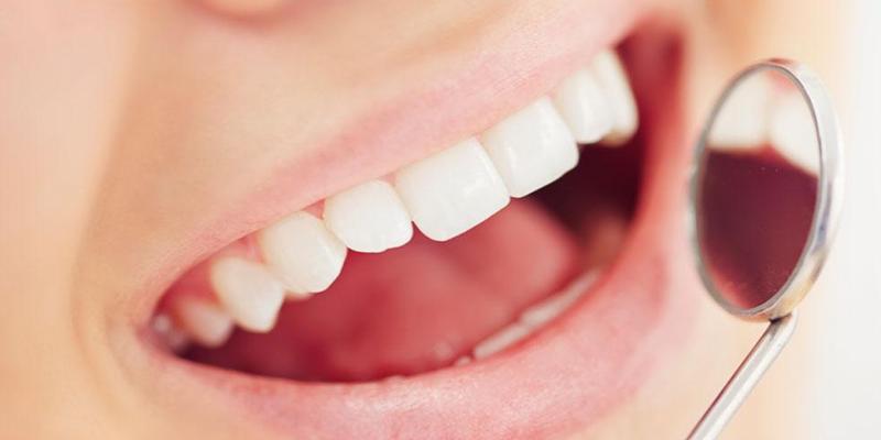 Endodoncia - Tratamiento de Conductos