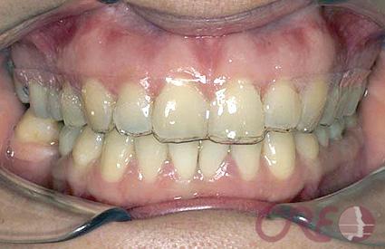 Ortodoncia Invisible - Antes