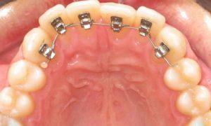 Ortodoncia Reducida