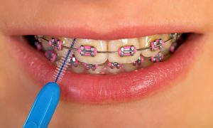 Interdental brushing