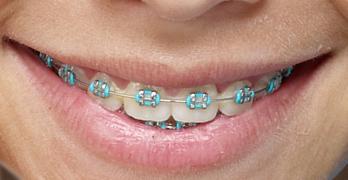 Resultado de imagen de ortodoncia en niños