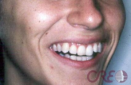 Ortodoncia Adultos - Antes