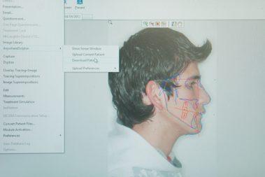 Clínica Creo ~ Diagnóstico ~ Cirugía Ortognática